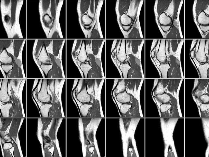 Пройти магнитно-резонансную томографию коленного сустава суставы лечение народные рецепты